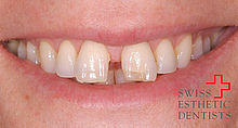 Example of a space closure with the invisible brace ‹Invisalign›