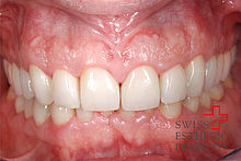 Smile design with new porcelain crowns