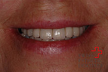 The unsightly smile has been reconstructed with porcelain cowns.