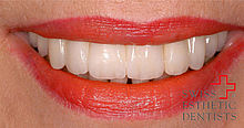 Reconstruction in the upper jaw by means of implants and all-porcelain crowns