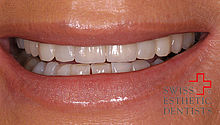 Correction of a ‹negative› smile line with abraded front teeth