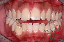 Extremely open bite (front teeth) closed with the invisible brace Invisalign.