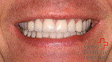 Reconstruction with all-porcelain crowns in the upper and lower jaw