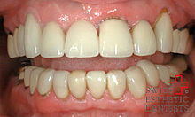 Replacement of metal-ceramic crowns by all-porcelain crowns
