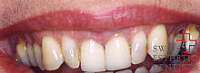 Achievement of an ‹important› smile with veneers in the upper jaw